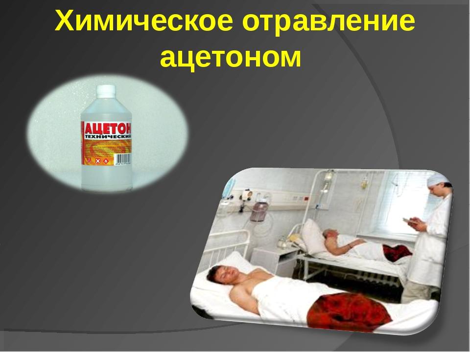 Химическое отравление ацетоном
