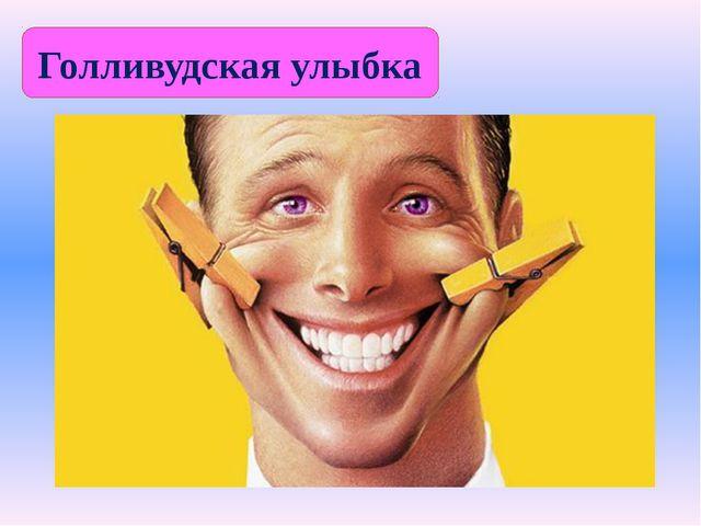 Голливудская улыбка
