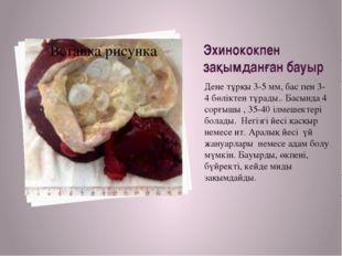 Эхинококпен зақымданған бауыр Дене тұрқы 3-5 мм, бас пен 3-4 бөліктен тұрады.