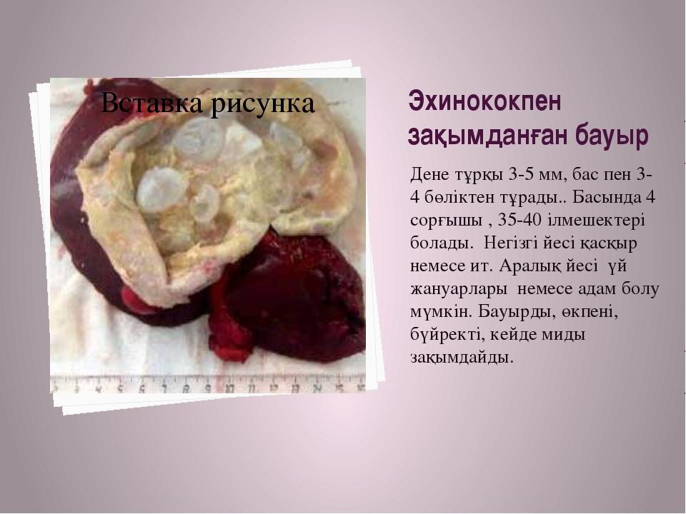 Эхинококпен зақымданған бауыр Дене тұрқы 3-5 мм, бас пен 3-4 бөліктен тұрады....