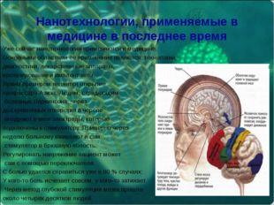 Нанотехнологии, применяемые в медицине в последнее время Уже сейчас нанотех