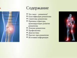 Содержание Что такое – ревматизм? Классификация ревматизма Симптомы ревматизм