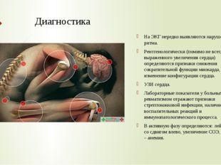 Диагностика На ЭКГ нередко выявляются нарушения ритма. Рентгенологически (пом