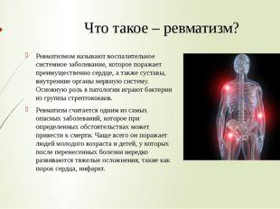Что такое – ревматизм? Ревматизмом называют воспалительное системное заболева
