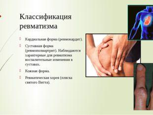 Классификация ревматизма Кардиальная форма (ревмокардит). Суставная форма (ре