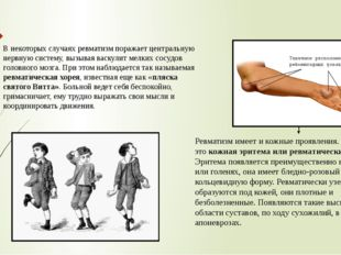 В некоторых случаях ревматизм поражает центральную нервную систему, вызывая в