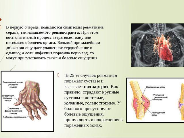 В первую очередь, появляются симптомы ревматизма сердца, так называемого ревм...
