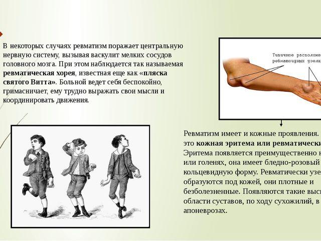 В некоторых случаях ревматизм поражает центральную нервную систему, вызывая в...