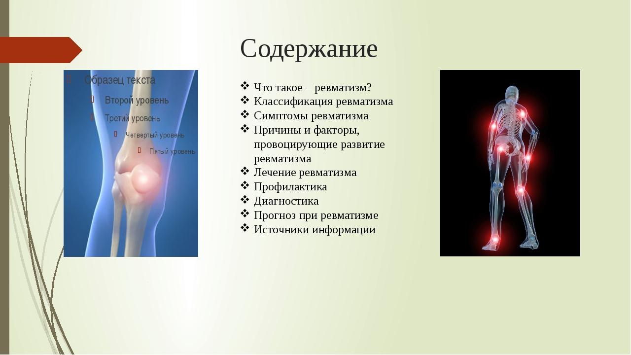 Содержание Что такое – ревматизм? Классификация ревматизма Симптомы ревматизм...