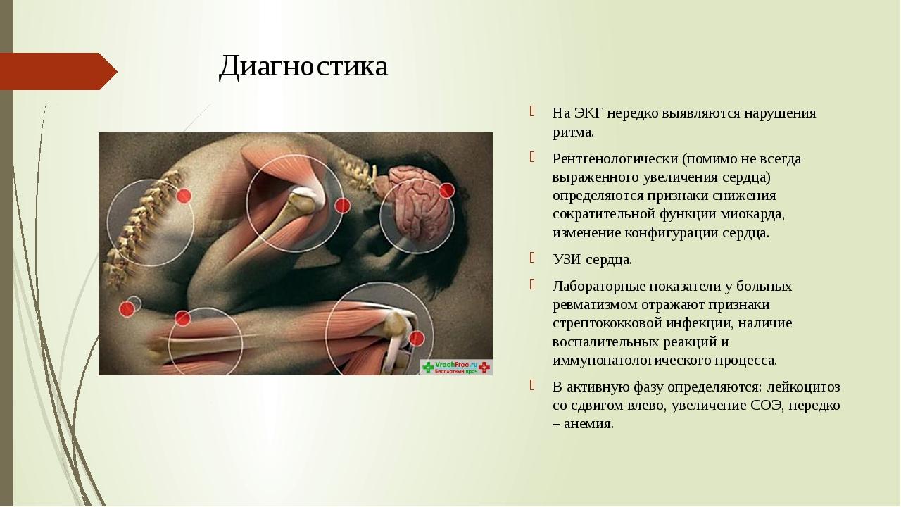 Диагностика На ЭКГ нередко выявляются нарушения ритма. Рентгенологически (пом...