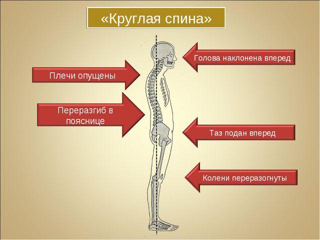 «Круглая спина»
