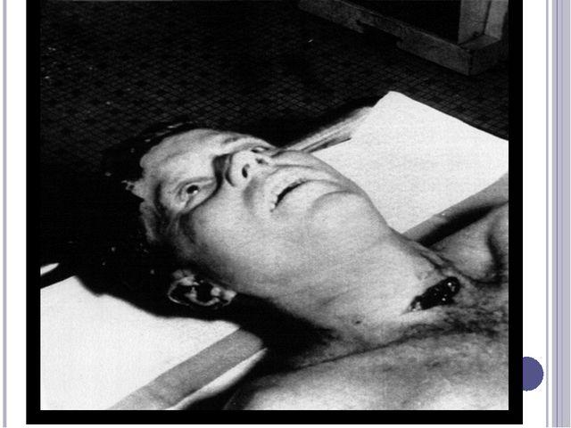 Джон Кеннедиумер в Парклендской мемориальной больнице, это произошло в 2 ча...