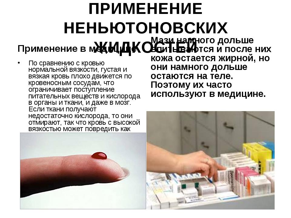 ПРИМЕНЕНИЕ НЕНЬЮТОНОВСКИХ ЖИДКОСТЕЙ Применение в медицине По сравнению с кров...
