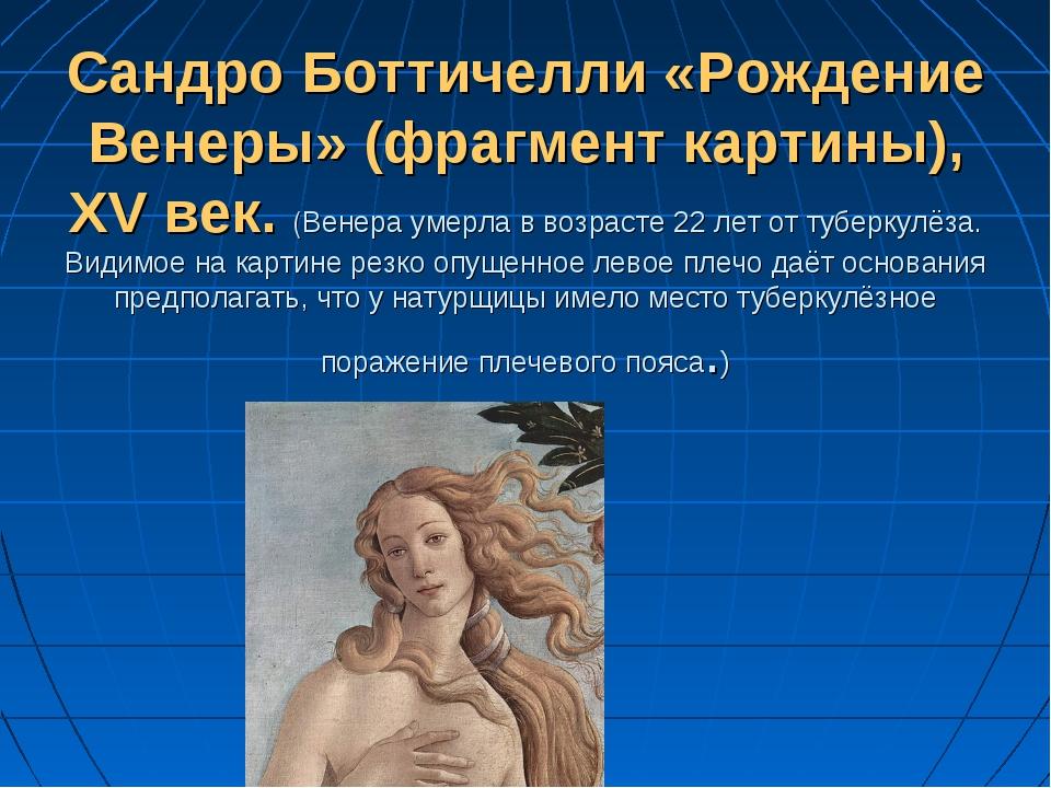 Сандро Боттичелли «Рождение Венеры» (фрагмент картины), XV век. (Венера умерл...