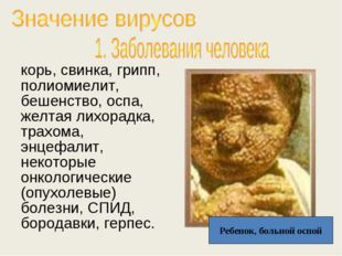 корь, свинка, грипп, полиомиелит, бешенство, оспа, желтая лихорадка, трахома,
