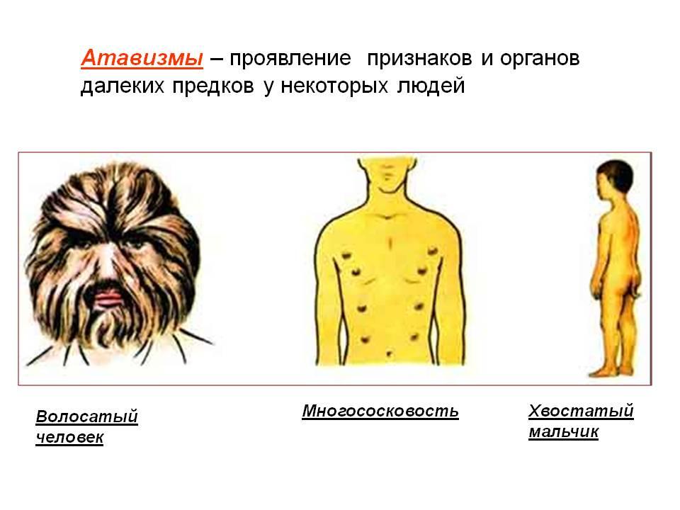 0009-009-Atavizmy-projavlenie-priznakov-i-organov-dalekikh-predkov-u-nekotorykh.jpg