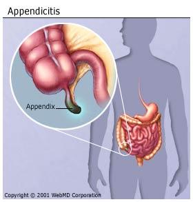 digestive_diseases_appendicitis_appendix.jpg