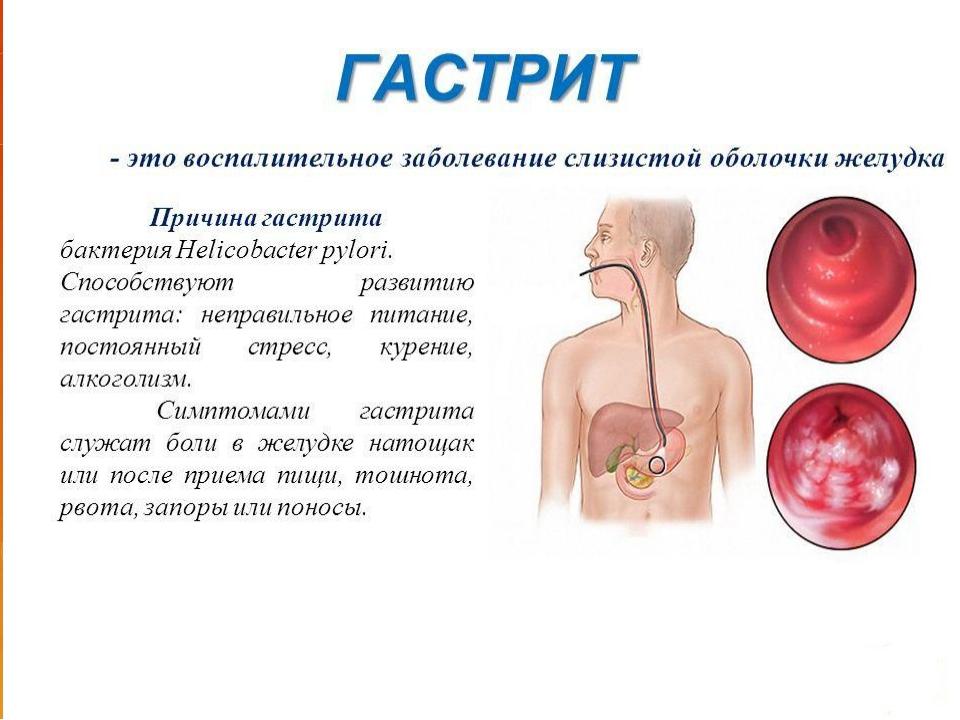Воспаление гастрита лечение