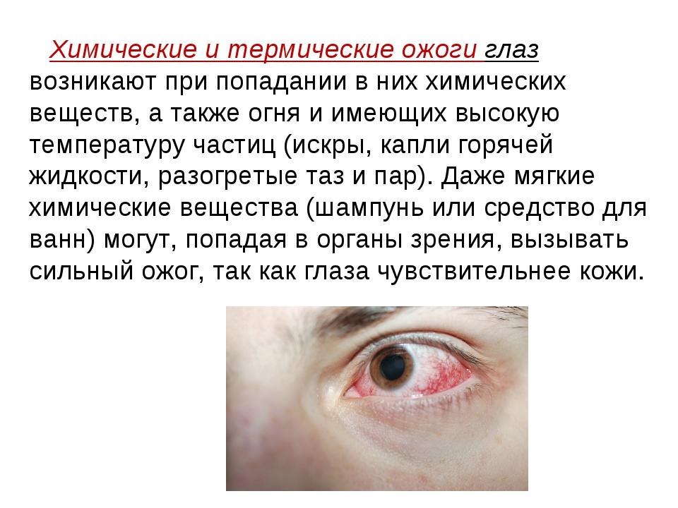 Химические и термические ожоги глаз возникают при попадании в них химических...
