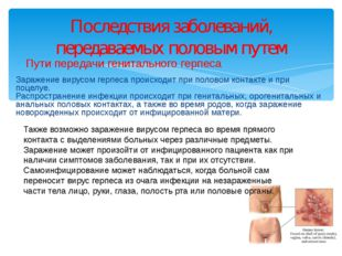 Пути передачи генитального герпеса Заражение вирусом герпеса происходит при п