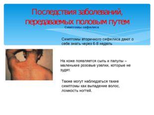Симптомы сифилиса Последствия заболеваний, передаваемых половым путем Симптом