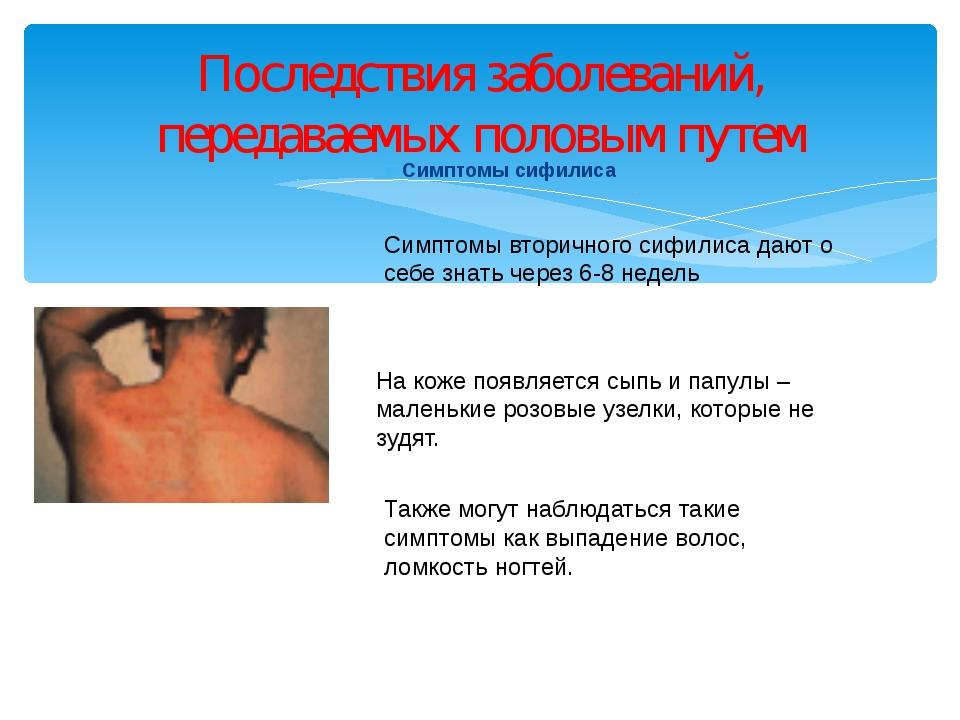 Симптомы сифилиса Последствия заболеваний, передаваемых половым путем Симптом...