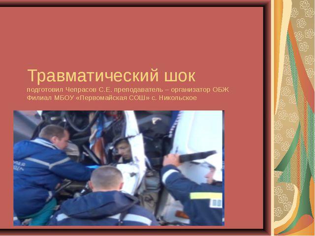 Травматический шок подготовил Чепрасов С.Е. преподаватель – организатор ОБЖ Ф...