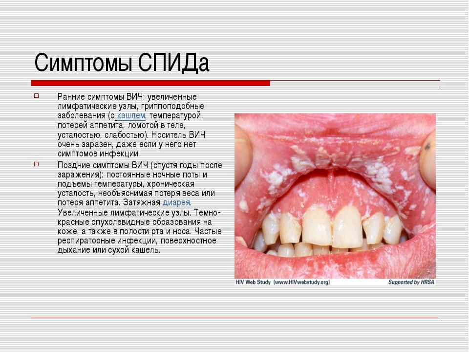 Симптомы СПИДа Ранние симптомы ВИЧ: увеличенные лимфатические узлы, гриппопод...