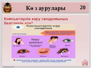 20 Компьютерлік көру синдромының белгілерін ата? Көз аурулары