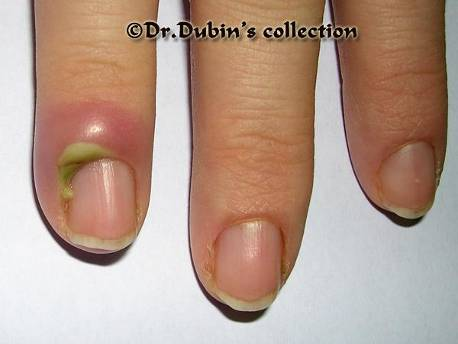 Грибок ногтей и ревматоидный артрит