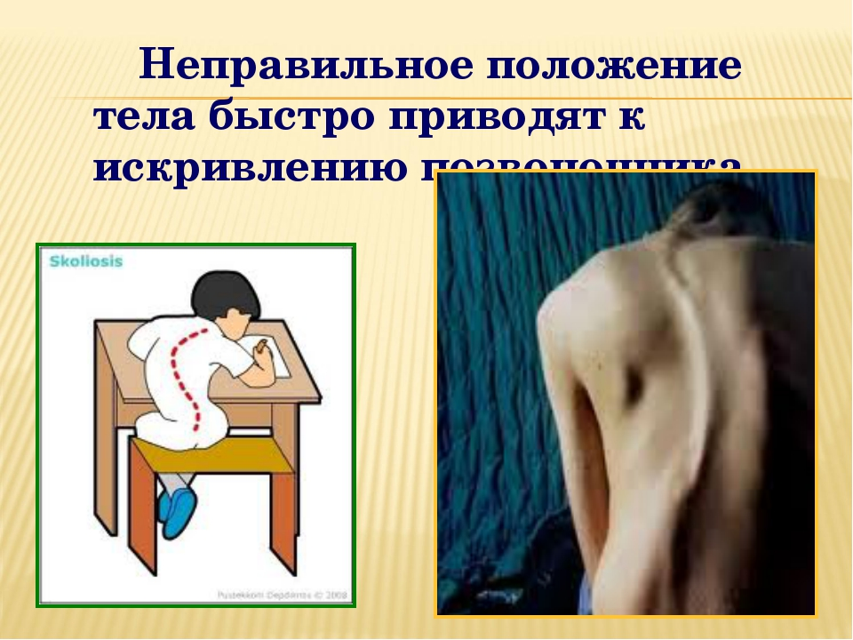 Неправильное положение тела быстро приводят к искривлению позвоночника