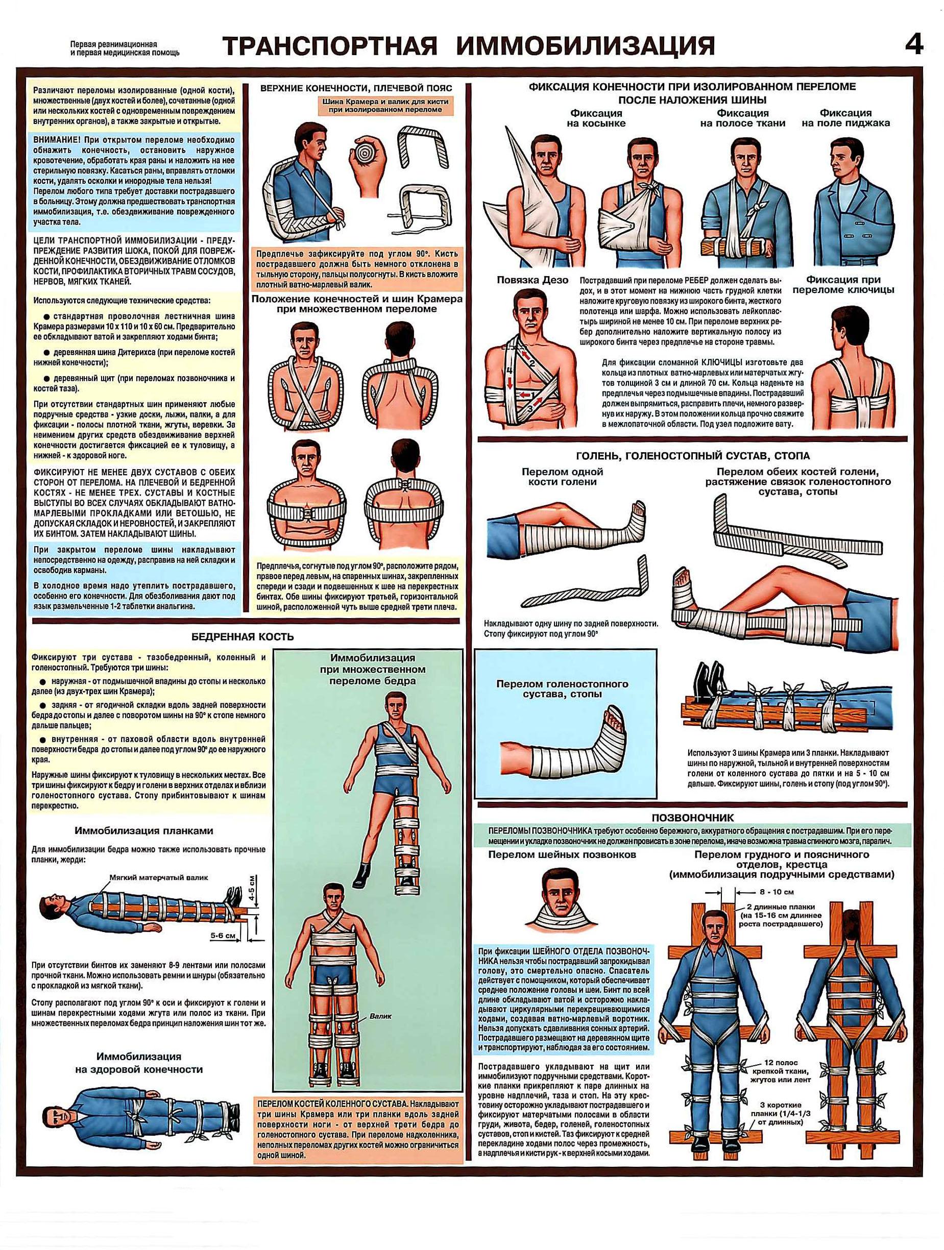 http://веб-механик.рф/images/plakat/med_pomosch/transportnaya_immobilizaziy.jpg