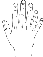 https://upload.wikimedia.org/wikipedia/commons/thumb/e/e6/Polydactyly_postaxial.gif/150px-Polydactyly_postaxial.gif