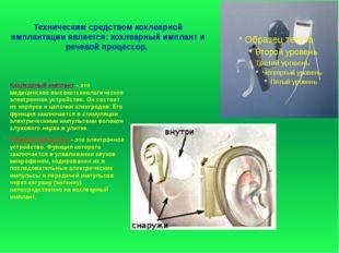 Техническим средством кохлеарной имплантации является: кохлеарный имплант и р