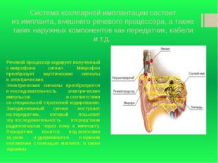 Система кохлеарной имплантации состоит изимпланта, внешнего речевого процесс
