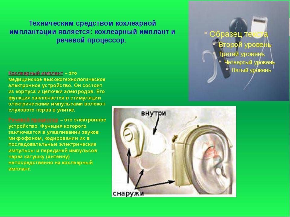 Техническим средством кохлеарной имплантации является: кохлеарный имплант и р...