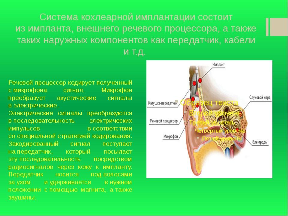 Голосовой имплантат