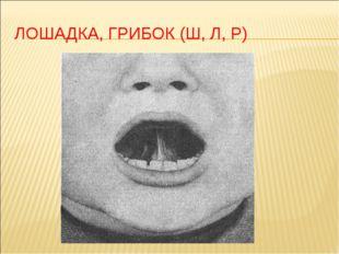 ЛОШАДКА, ГРИБОК (Ш, Л, Р)