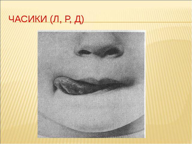 ЧАСИКИ (Л, Р, Д)
