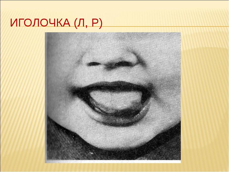 ИГОЛОЧКА (Л, Р)