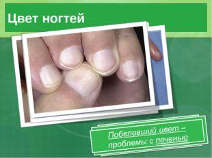 Цвет ногтей