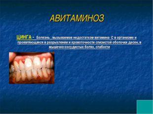АВИТАМИНОЗ ЦИНГА - Болезнь , вызываемая недостатком витамина С в организме и