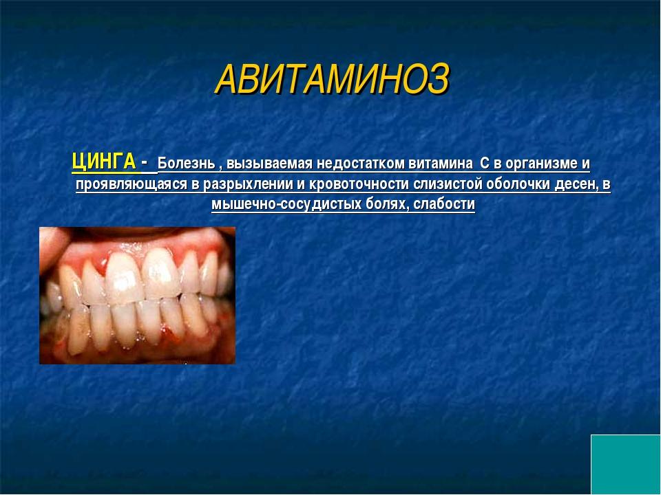 АВИТАМИНОЗ ЦИНГА - Болезнь , вызываемая недостатком витамина С в организме и...