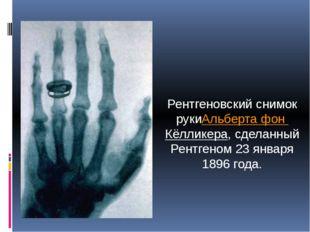 Рентгеновский снимок рукиАльберта фон Кёлликера, сделанный Рентгеном 23 январ