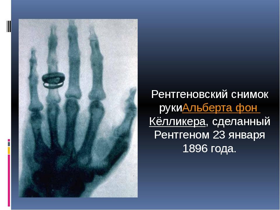Рентгеновский снимок рукиАльберта фон Кёлликера, сделанный Рентгеном 23 январ...