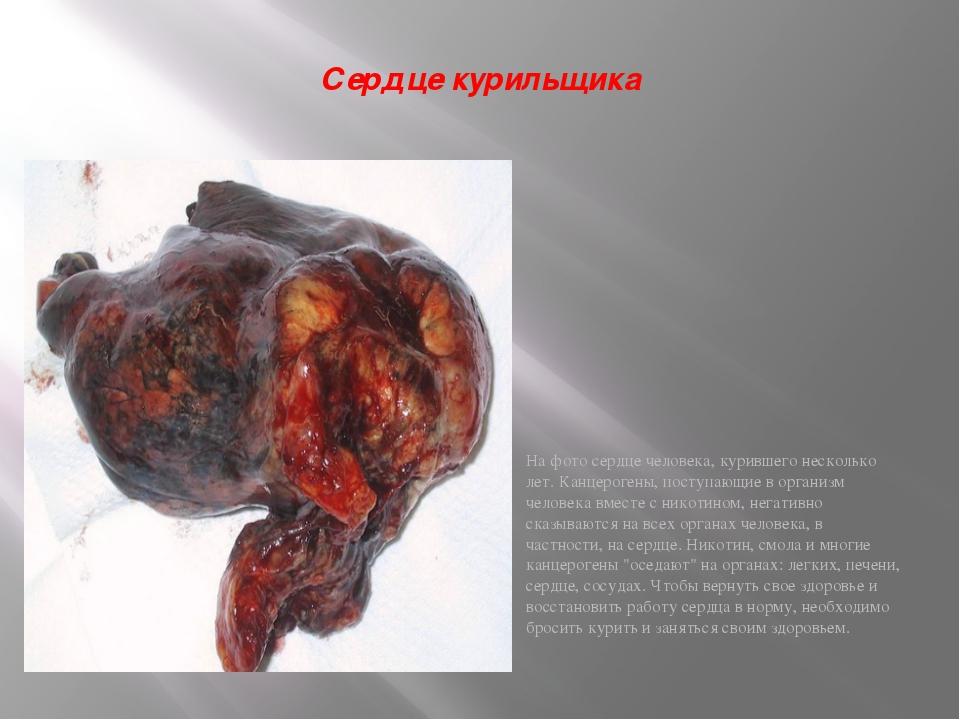 Сердце курильщика На фото сердце человека, курившего несколько лет. Канцероге...