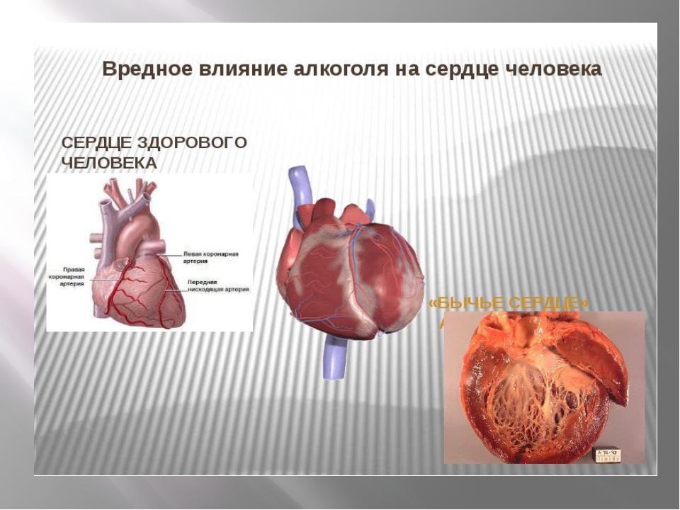Сердце страдает от алкоголизма