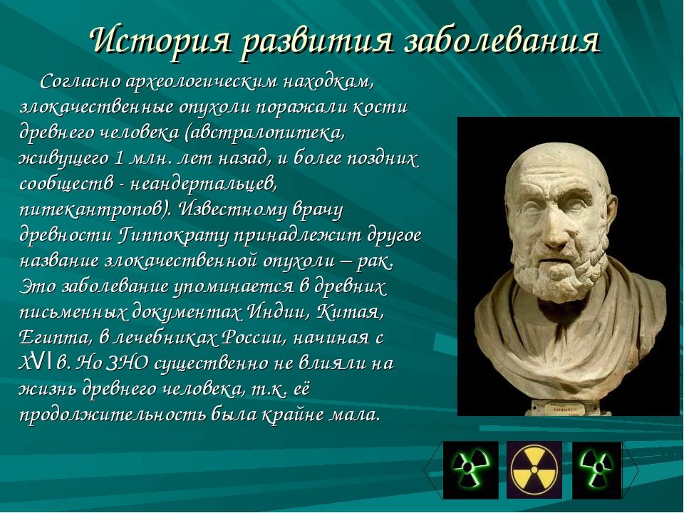 История развития заболевания Согласно археологическим находкам, злокачественн...