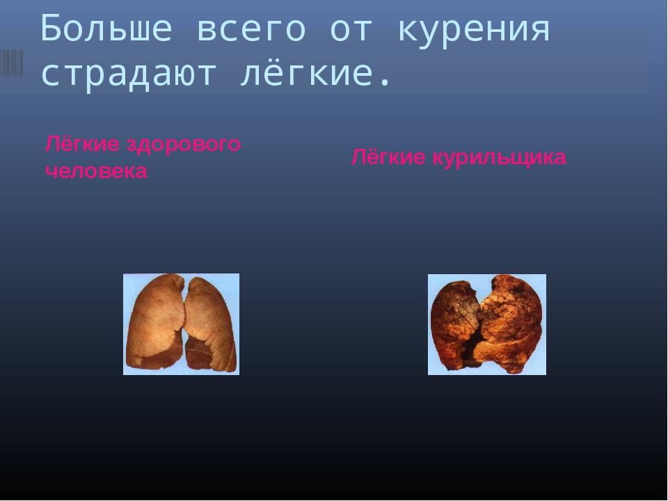 Больше всего от курения страдают лёгкие. Лёгкие здорового человека Лёгкие кур...