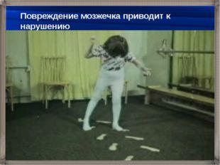 Повреждение мозжечка приводит к нарушению плавности движений, равновесия, тон